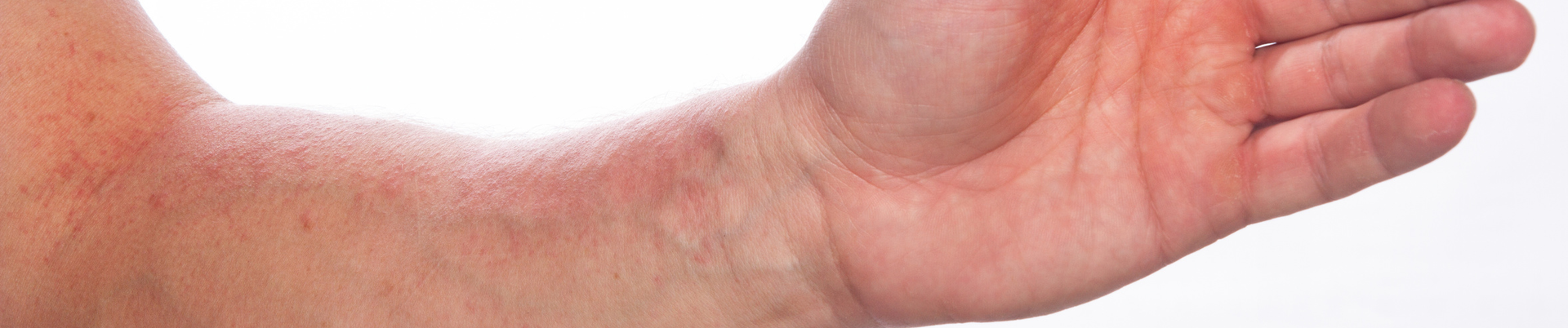 Hautausschlag am Arm